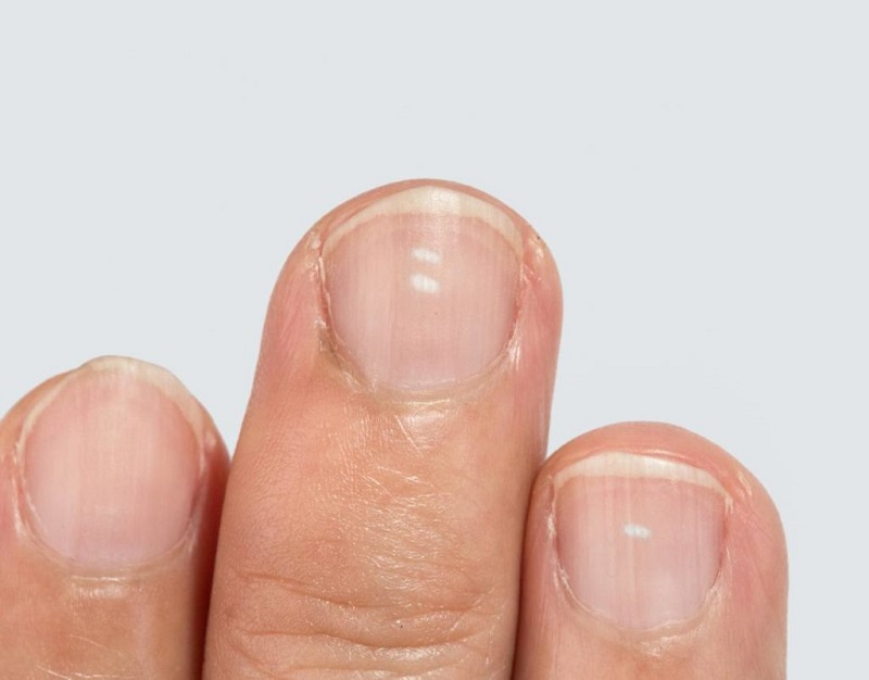 common nail diseases