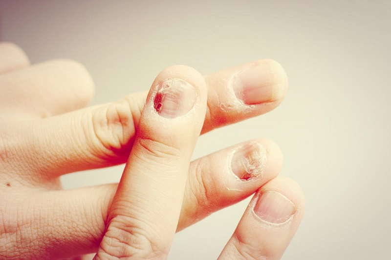common nail diseases